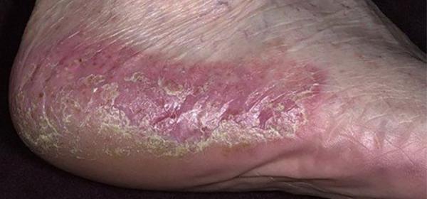 a lábak duzzanata vörös foltok pikkelysömör a fejbőr hogyan lehet otthon gyógyítani