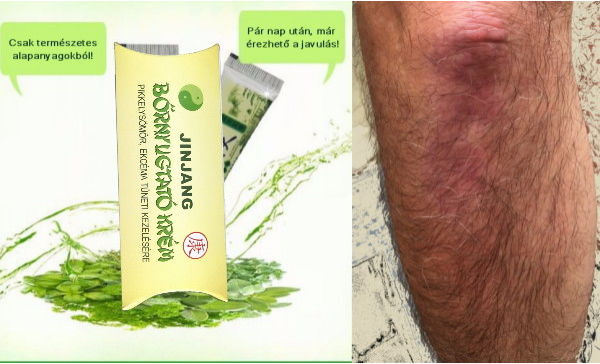 Bőrbetegségek: pikkelysömör, psoriasis, ekcéma kezelése gombákkal