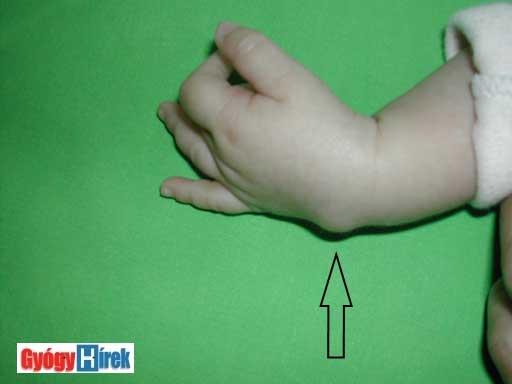 hogyan kell kezelni a pikkelysmrt a kezeken fotó pikkelysömör kezelése psorinohel