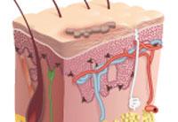 a pikkelysömör időben történő kezelése vörös foltok a hónalj alatt hogyan kell kezelni