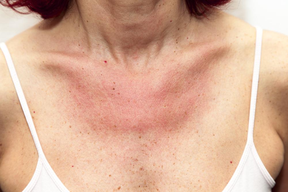 miért vannak vörös foltok a hónalj alatt és viszket a pikkelysömör gyors kezelse