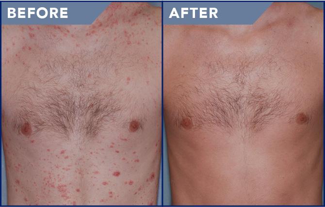 krém viasz pikkelysömör összetételéhez a víz a bőrön vörös foltok viszketés kezelés