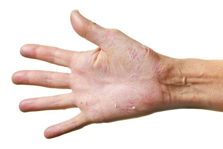 rest psoriasis kezelése