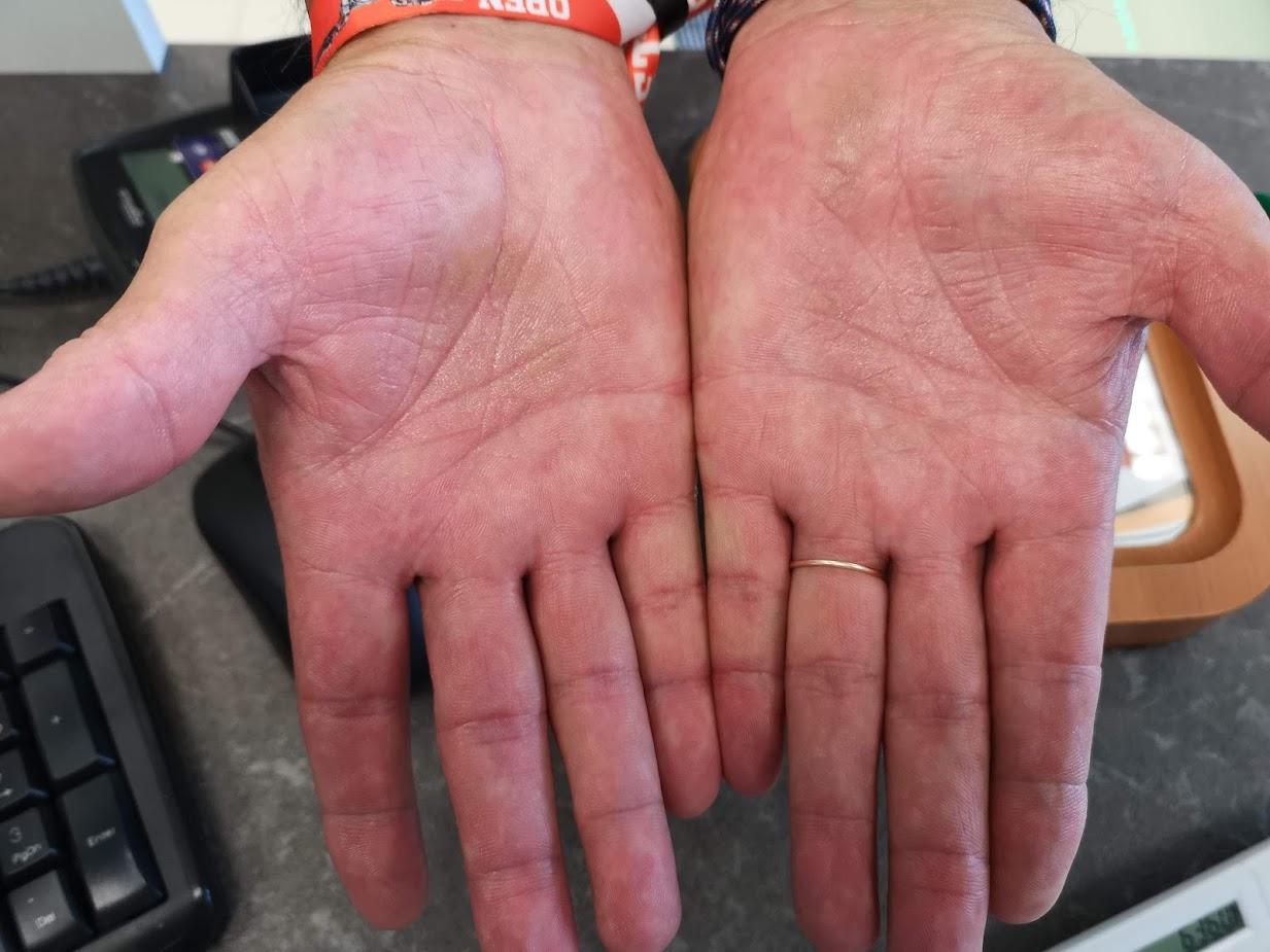 vörös foltok a kéz jobb tenyerén