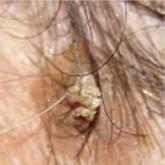 a fejbőr piros foltokat viszket
