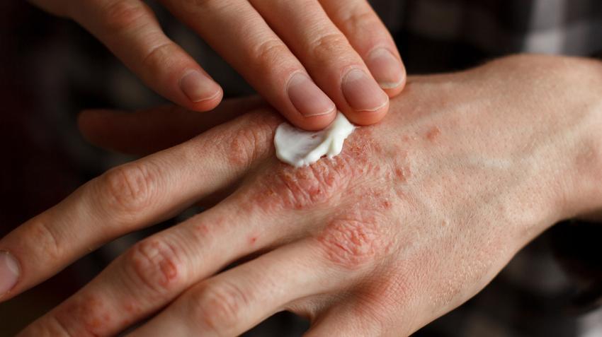 bőrgyógyász kezeli a pikkelysömör vörös duzzanat és foltok a lábakon