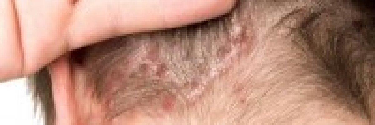 kenőcs pikkelysömörhöz a fülek mögött vörös foltok a váll bőrén