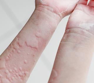 Irritáció és bőrpír a kézen - Tünetek