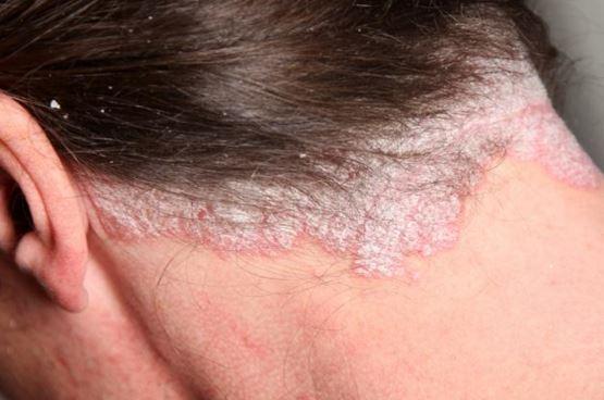 pikkelysömör haj kezelés alatt)
