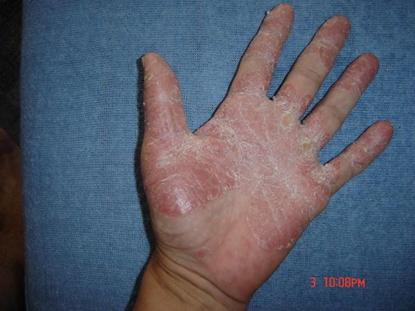 pikkelysömör az ujjakon népi gyógymódokkal)