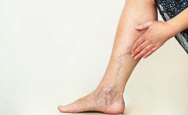 a lábán vörös folt jelent meg visszérrel