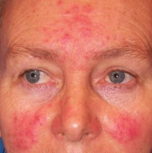 arc vörös foltokkal ecsetelés után