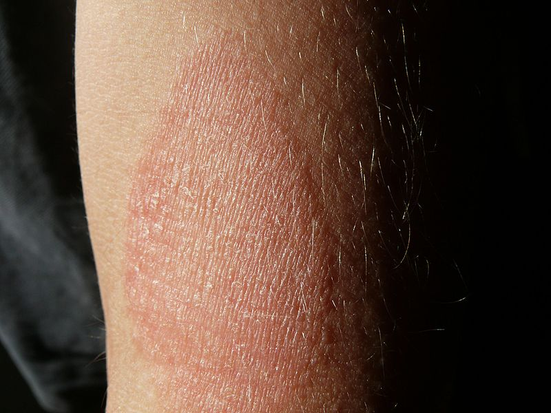 papuláris plakk pikkelysömör kezelése