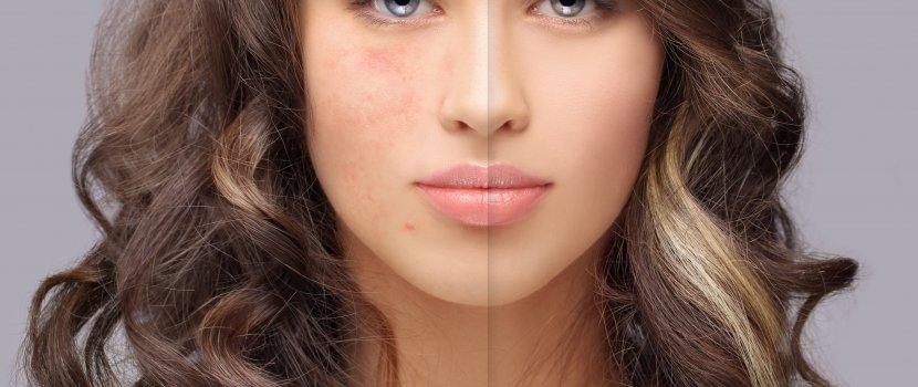 rumvörös foltok az arcon pikkelysömör homeopátia kezelése