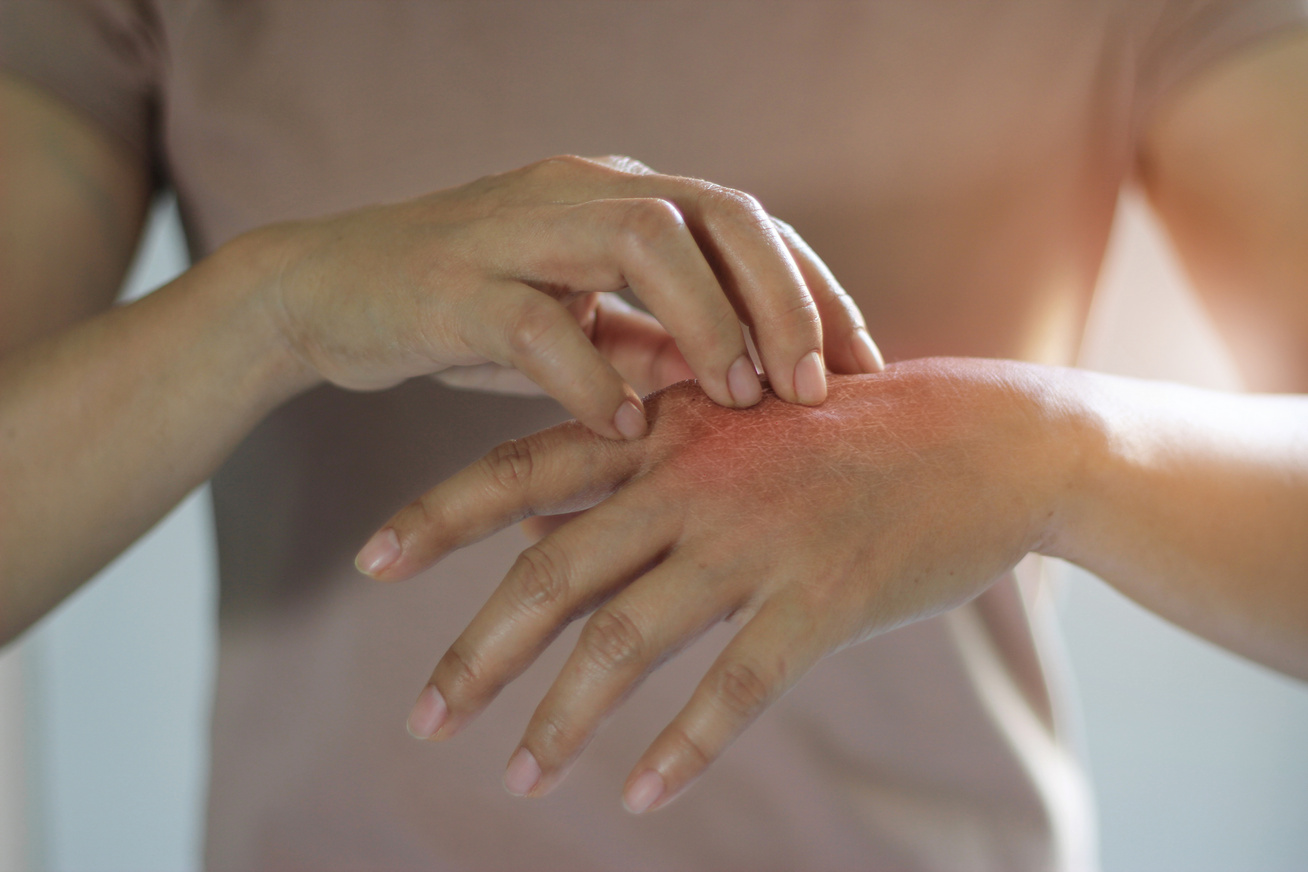 piros folt a kezén, mit kell tenni)