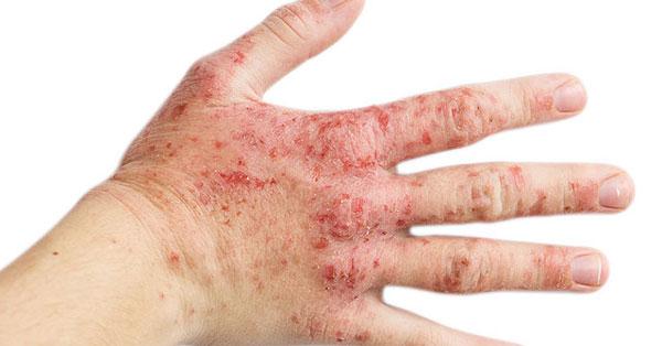 egy nagy piros folt a kézen mi a pikkelysömör a fejn, s hogyan kell kezelni fotó