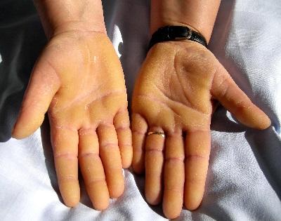 vörös folt a bal kéz tenyerén