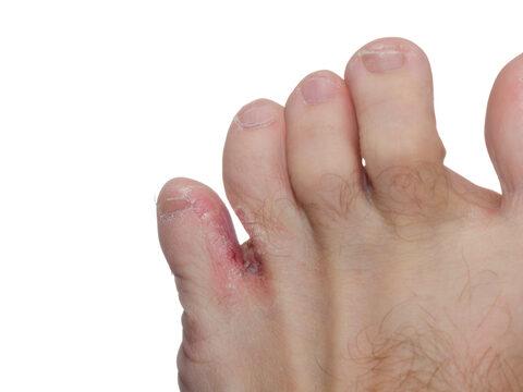 a lábujjak között egy vörös folt jelent meg)