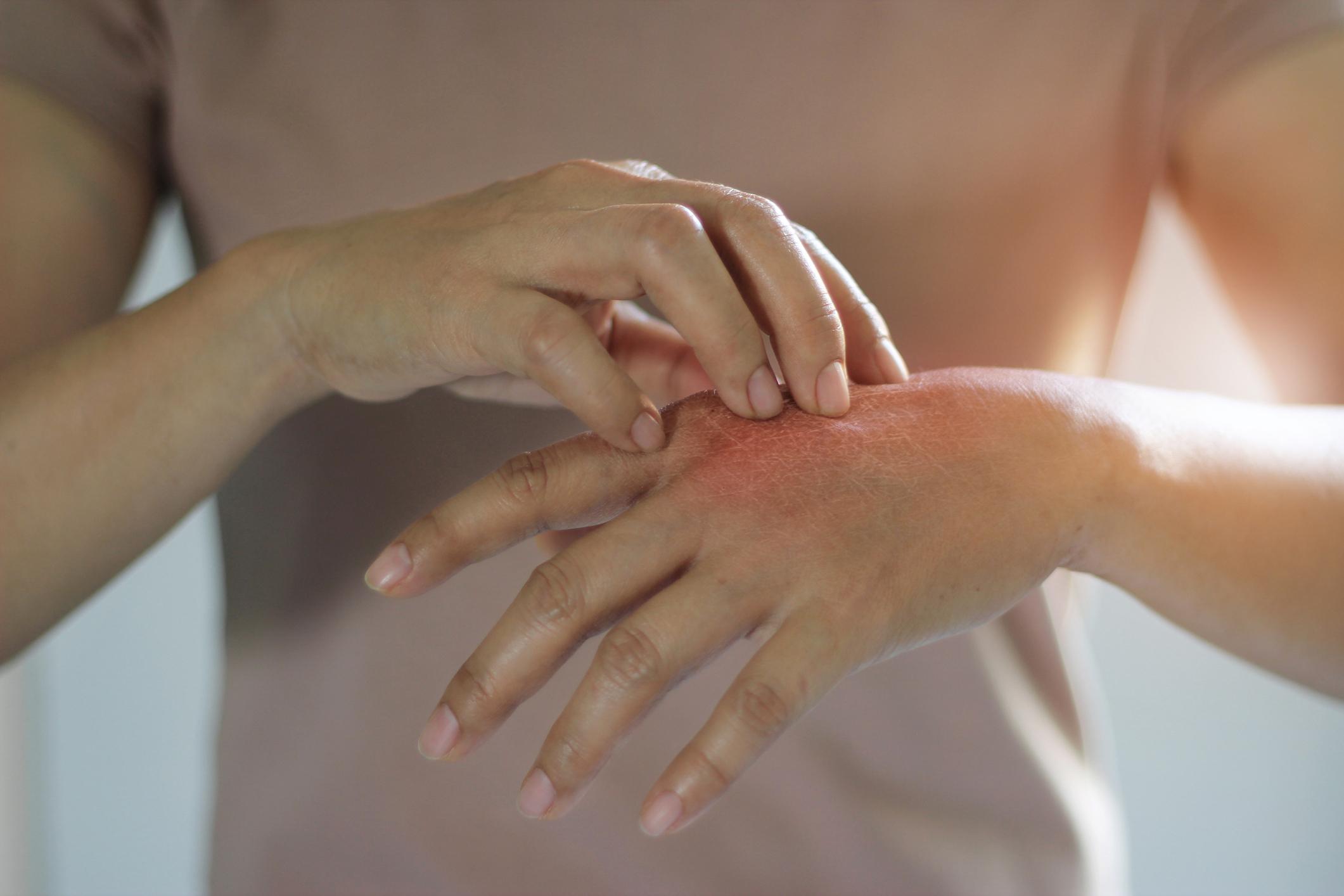 orvosi felszerelések pikkelysömör kezelése