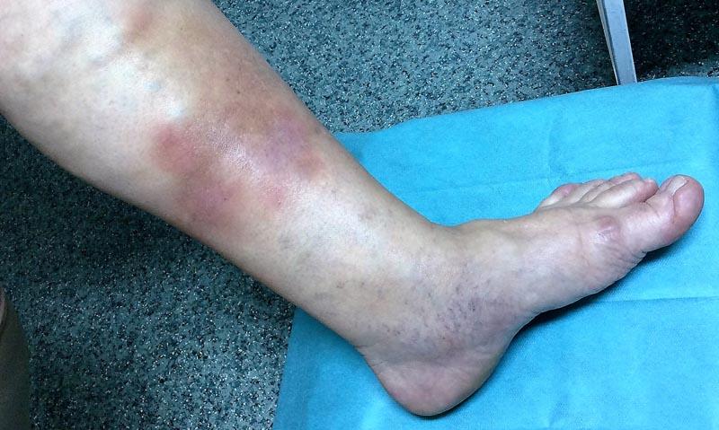 az alsó lábszáron nagy piros folt viszket