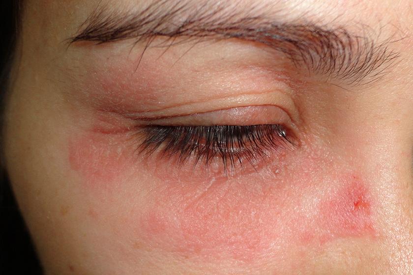 a szemhéjon, vörös foltok viszketés kezelése