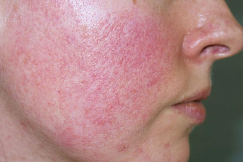 vörös foltok az arcon cukorbetegség fotó