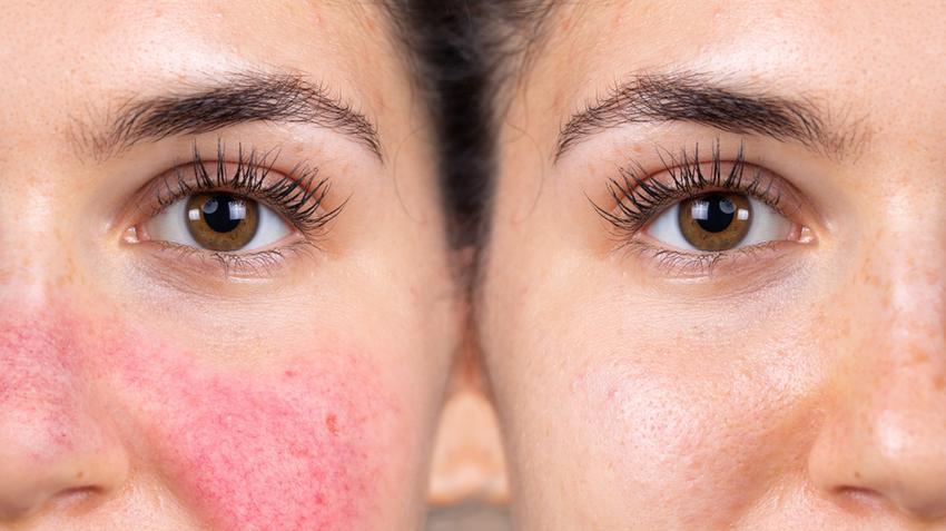 piros foltok az arcon pillangókép formájában