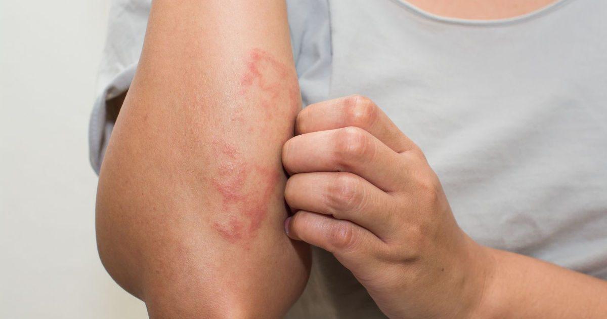 miért vannak vörös foltok a hónalj alatt és viszket pikkelysömör kezelése d pegano