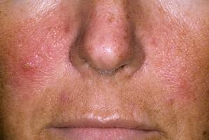 pikkelysömör az arcon fotó a kezdeti szakaszban kezelés)