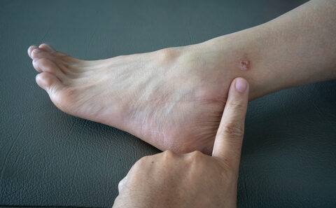 pikkelysömör kezelése a láb bőrén)