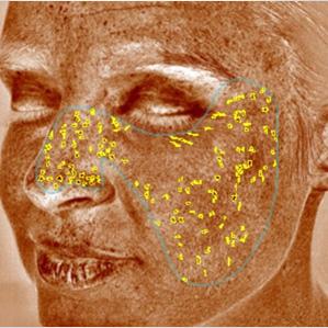 pigmentált vörös foltok az arcfotón szokatlan kezelsek pikkelysömörhöz