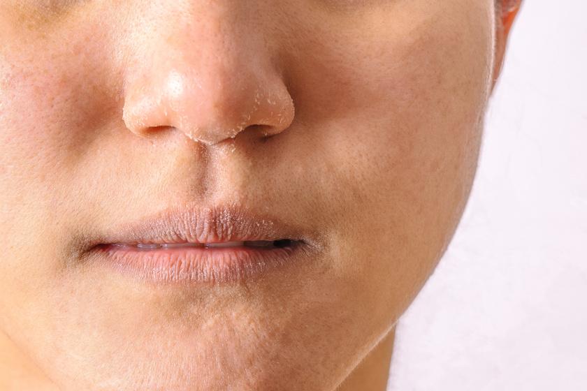 dermatitis az arcon vörös foltok formájában)