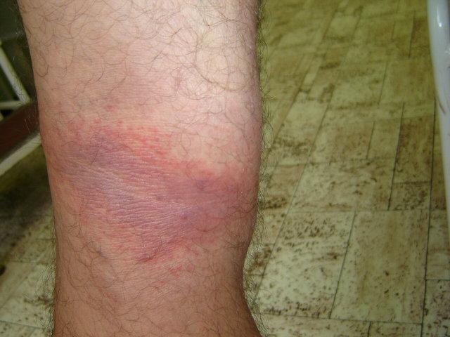 kis piros folt a lábán, tömítéssel
