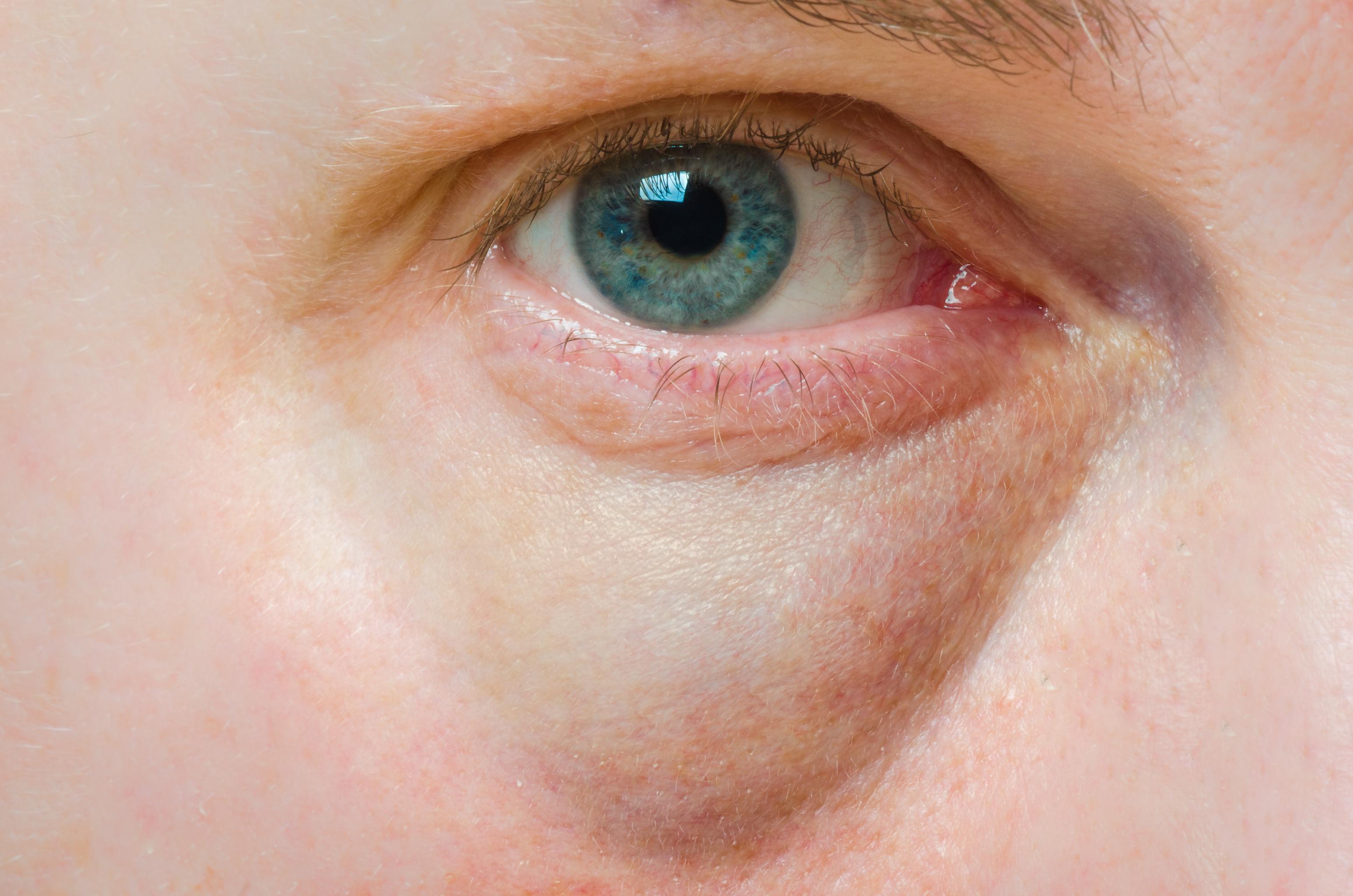 a szem alatt vörös folt és viszketés