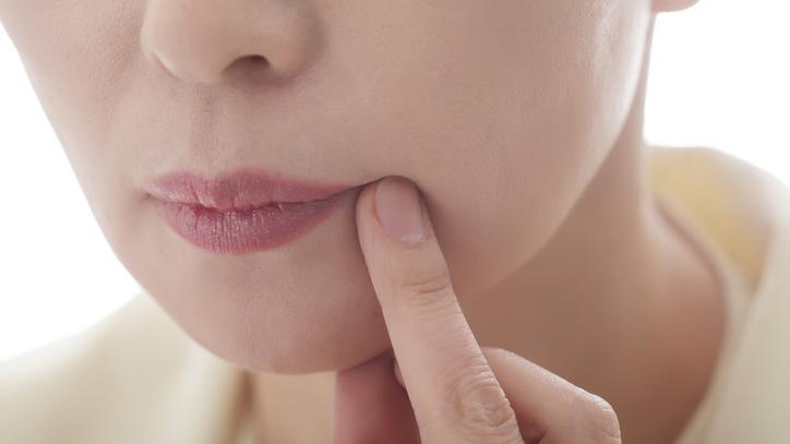 vörös foltok az ajkakon hogyan kell kezelni