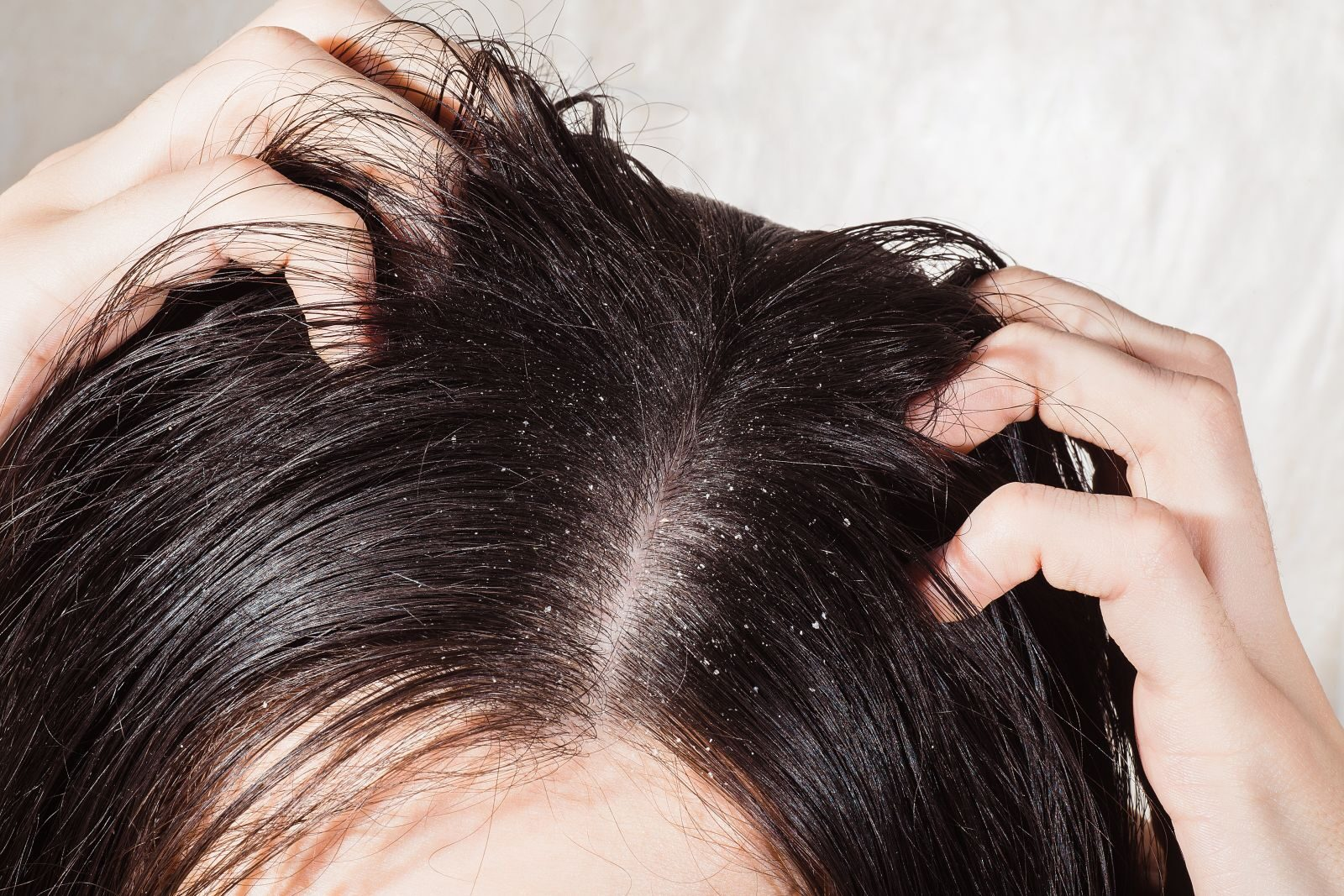hogyan kezeljük a fejbőr pikkelysömörét a hajban)