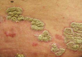 peptidek pikkelysömör kezelésére tusfürdő pikkelysömör ellen