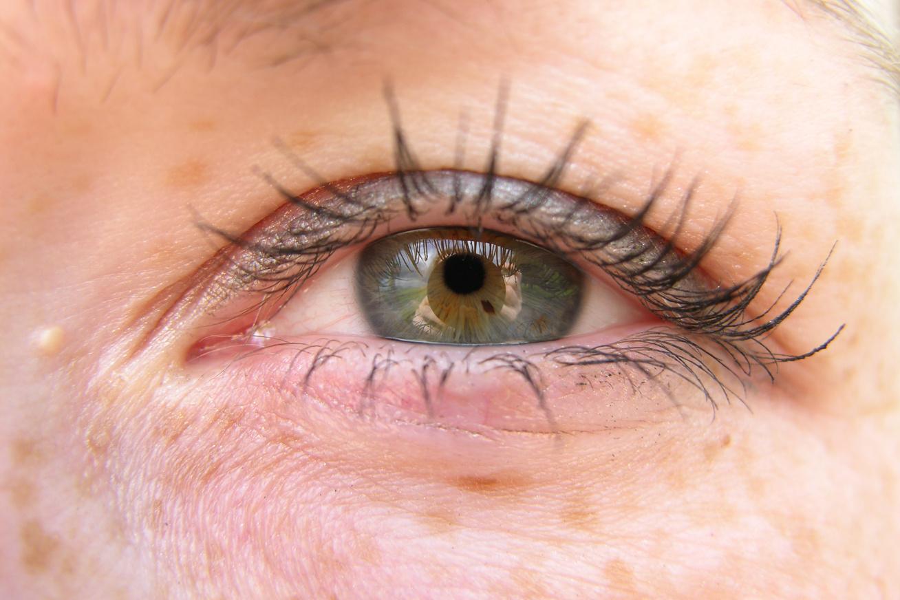 vörös pikkelyes foltok az arcon és a szemhéjon)