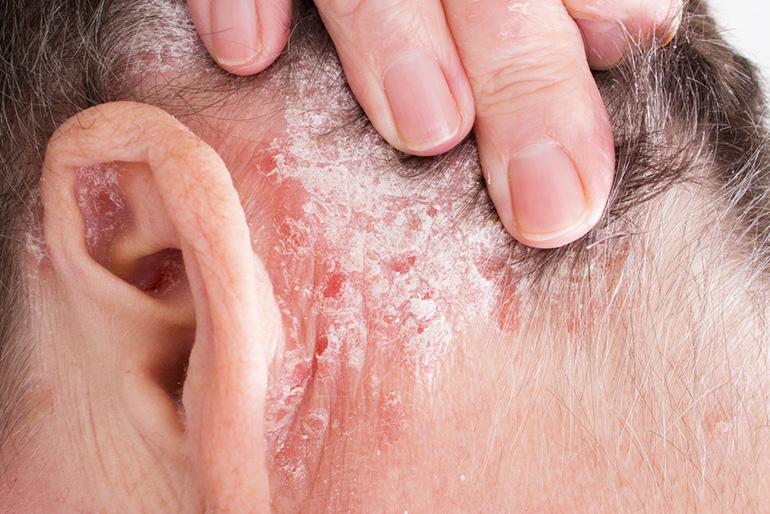 A fejbőr psoriasis a betegség leggyakoribb formája.