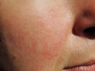 vörös viszkető foltok az orr közelében