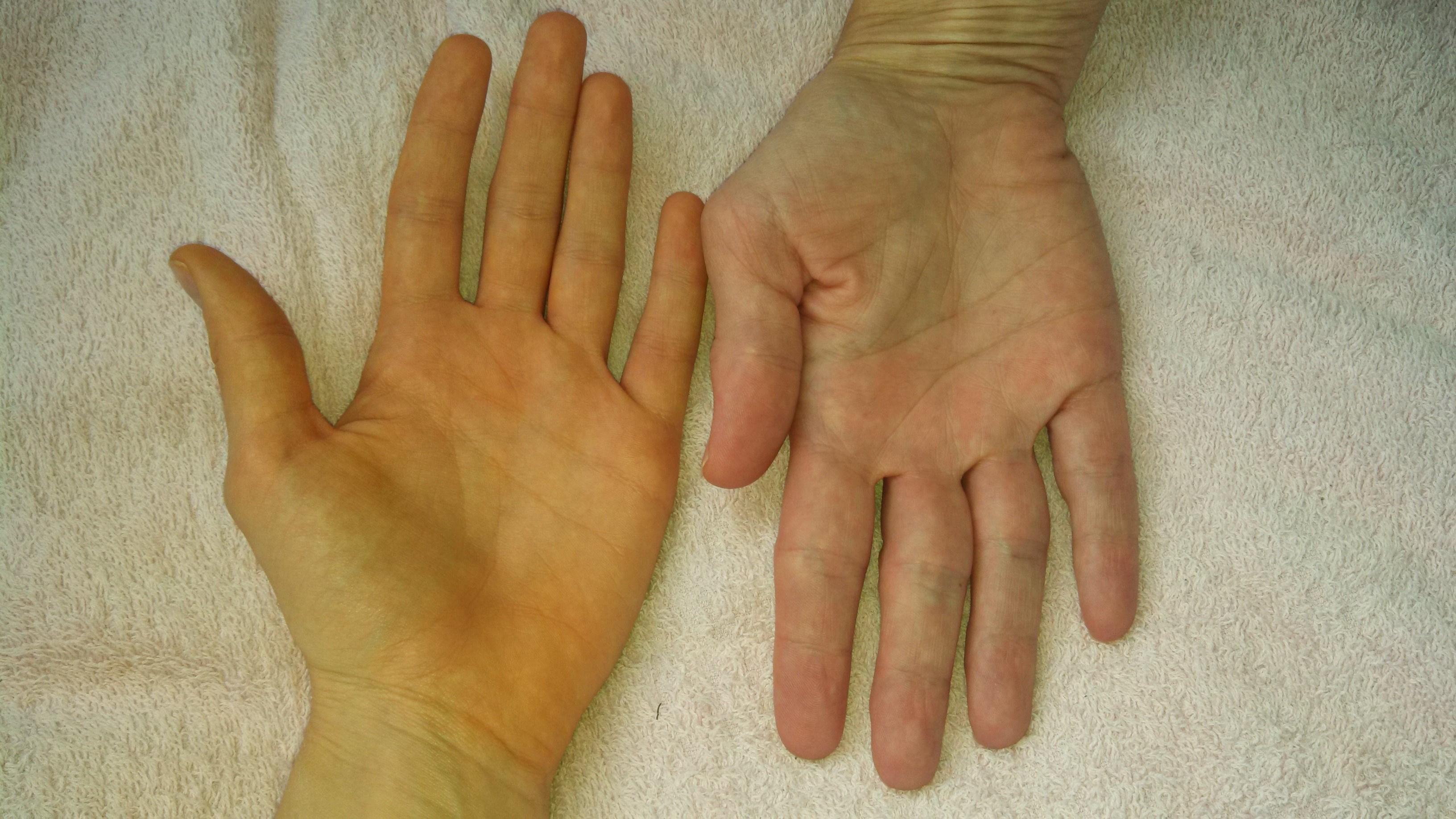piros foltok az ujjakon fotó