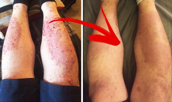 krém viasz pikkelysömör összetételéhez a sertés bőrén vörös foltok vannak