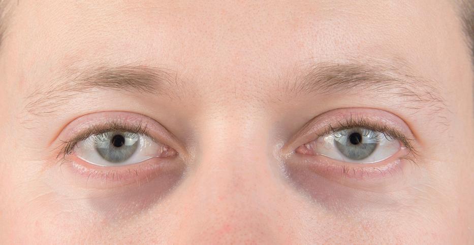 vörös foltok lehúzódnak a szem alatt