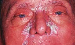 seborrheic dermatitis pikkelysmr kezels