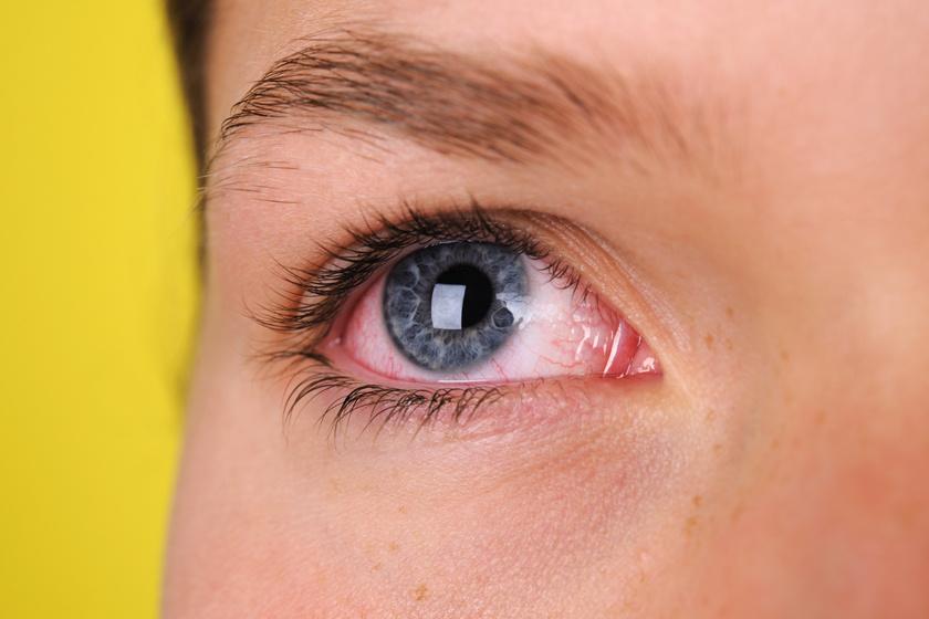 vörös szemfoltok kezelése a szemhéjon)