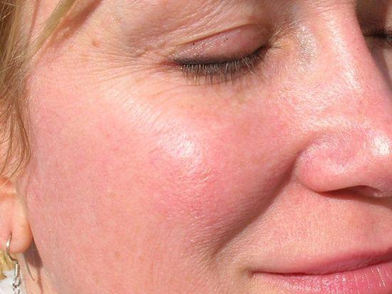hogyan lehet megszabadulni az arc vörös pelyhes foltjaitól kenőcs viasz alapján pikkelysömörhöz