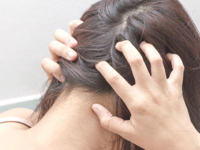 pikkelysömör a hajban hogyan kell kezelni)