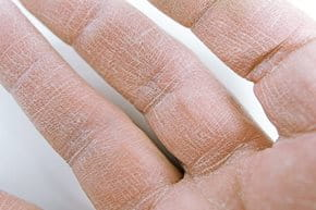 krém pikkelysömörhöz az ujjakon