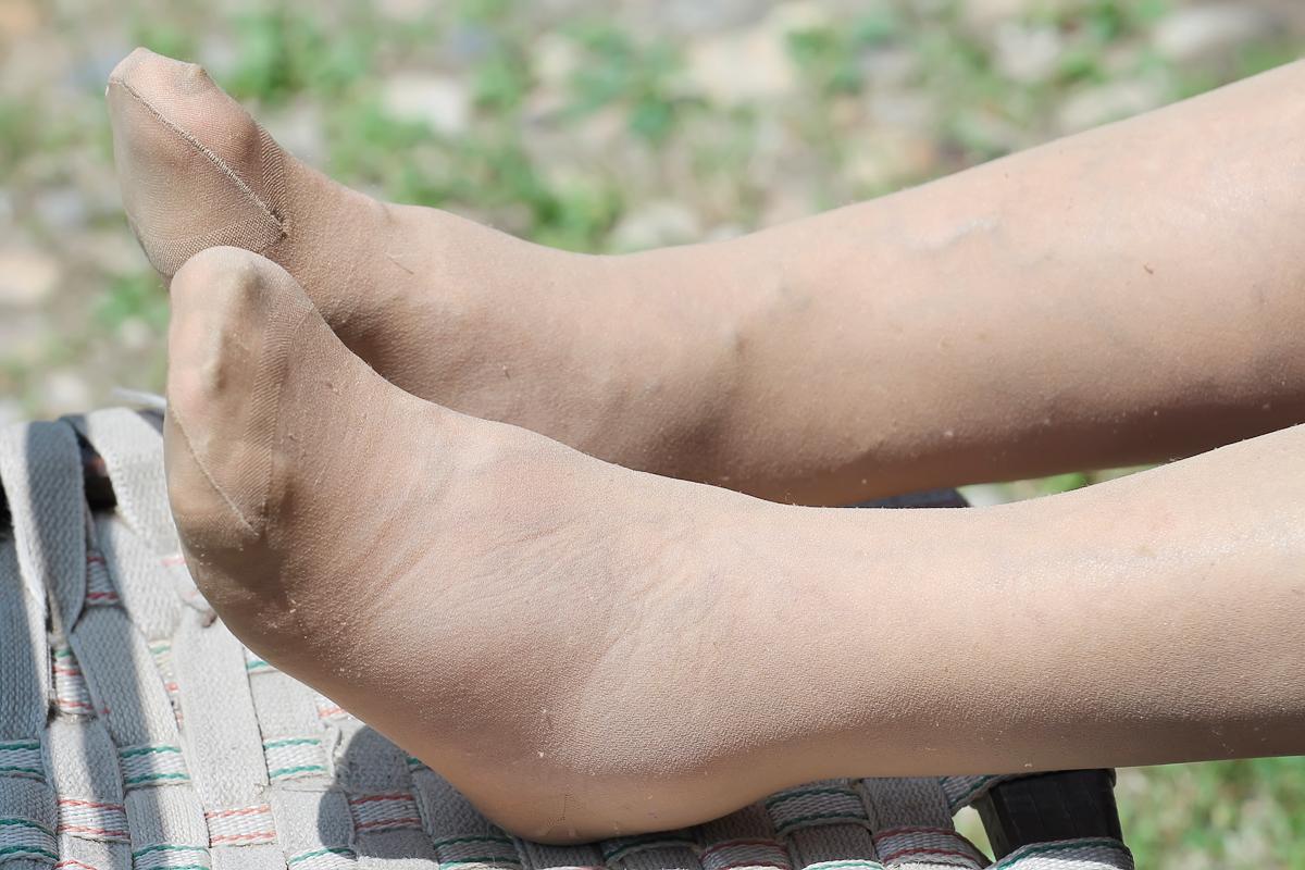 Vörös foltok a lábán: sötét, barna foltok oka, ha viszket, pelyhes - Szőrtelenítés
