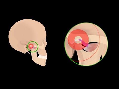 Hogyan lehet csökkenteni az ízületi diszlokációs fájdalmat, A derékfájás: hogyan kezelhető?